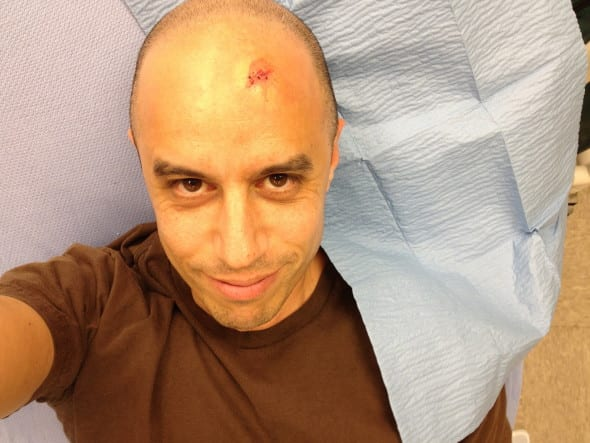 zdoggmd gets stitches